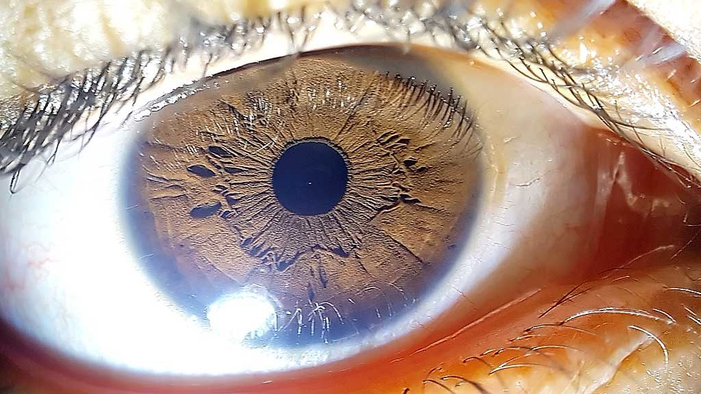 my daughter's eye